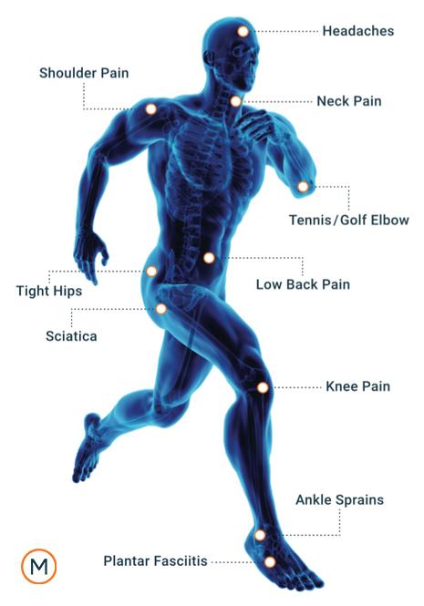Chiropractor, sciatica, lower back pain, low back pain in Fishhawk, FL
