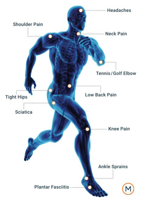 Chiropractor, sciatica, lower back pain, low back pain in Valrico, FL
