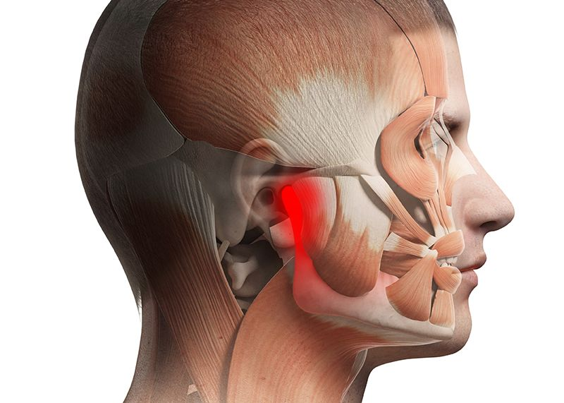Jaw Pain Tmj Disorder
